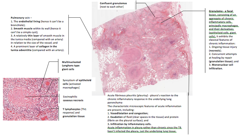 SH/Pracs/Chronic inflammation and tuberculosis - StudyingMed